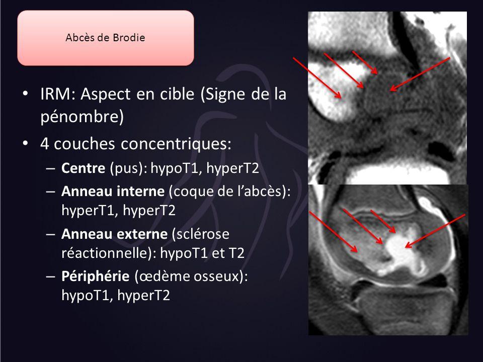 IRM: Aspect en cible (Signe de la pénombre) 4 couches concentriques: