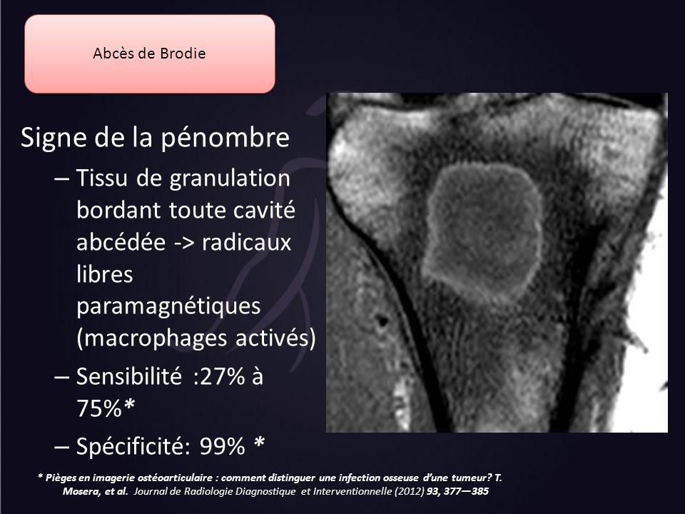 Abcès de Brodie Signe de la pénombre. Tissu de granulation bordant toute cavité abcédée -> radicaux libres paramagnétiques (macrophages activés)