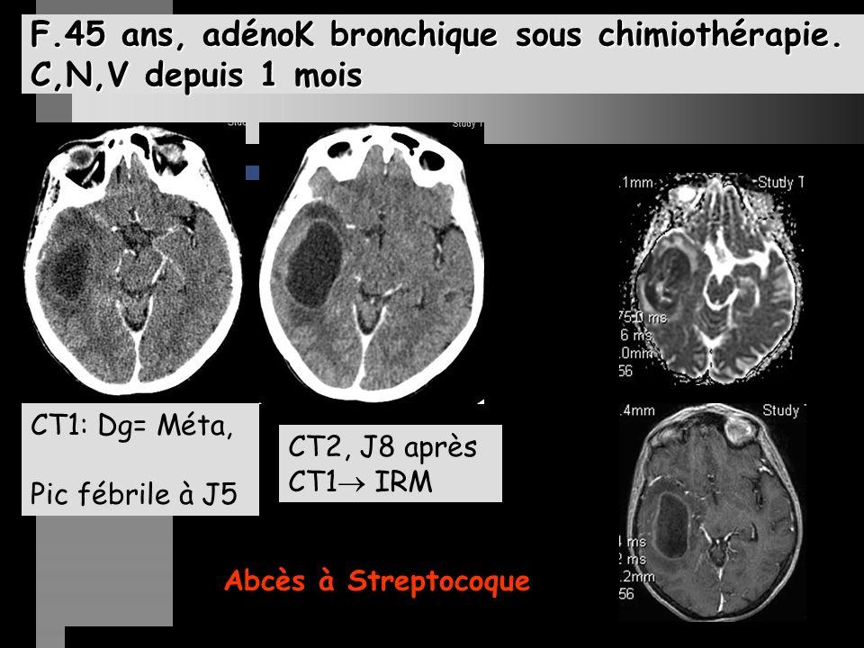 F.45 ans, adénoK bronchique sous chimiothérapie. C,N,V depuis 1 mois