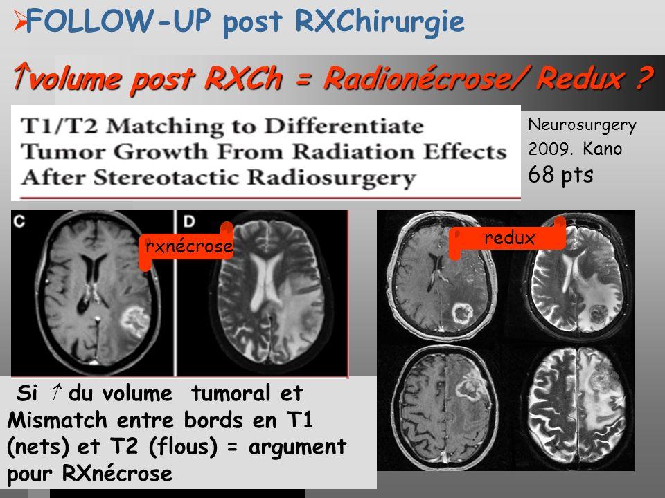 volume post RXCh = Radionécrose/ Redux