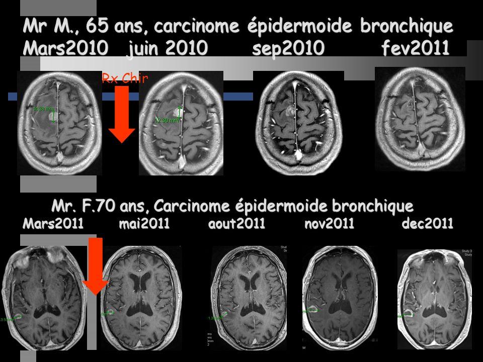 Mr M., 65 ans, carcinome épidermoide bronchique Mars2010 juin 2010 sep2010 fev2011