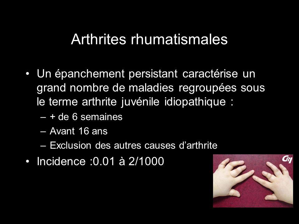 Arthrites rhumatismales