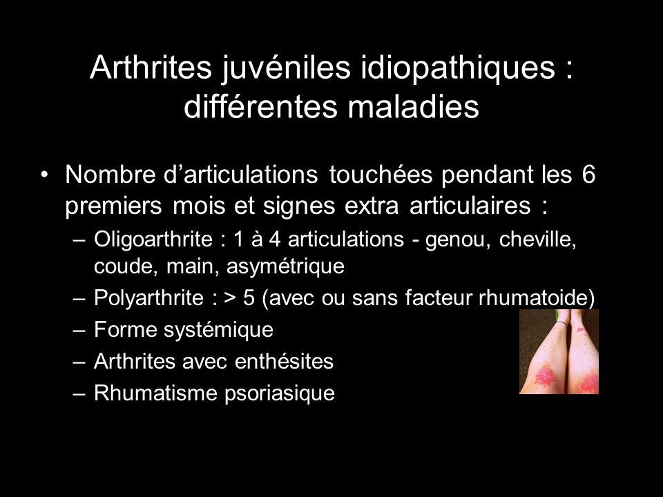 Arthrites juvéniles idiopathiques : différentes maladies