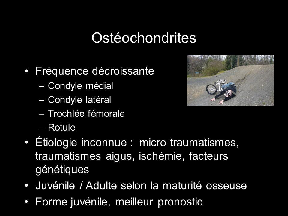 Ostéochondrites Fréquence décroissante