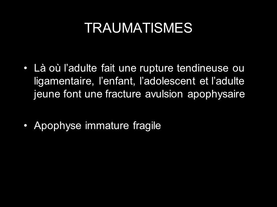 TRAUMATISMES