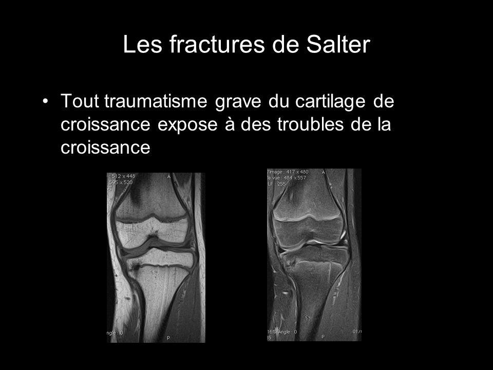 Les fractures de Salter