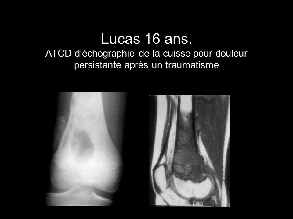 Lucas 16 ans. ATCD d'échographie de la cuisse pour douleur persistante après un traumatisme