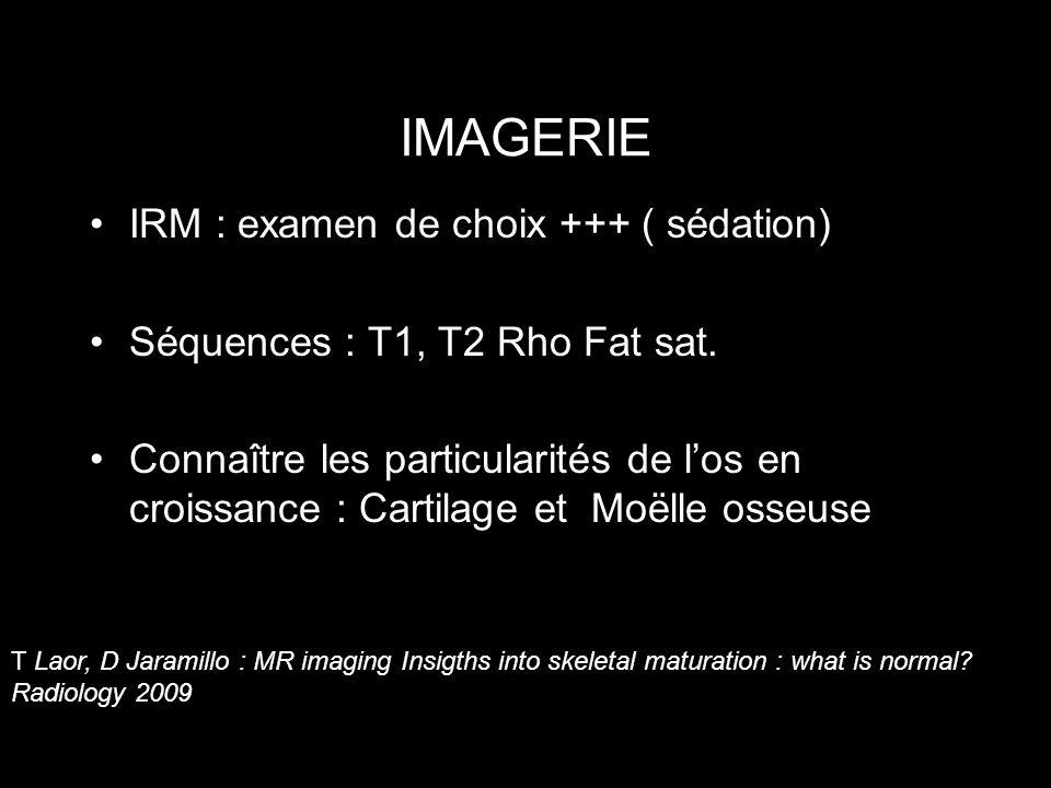 IMAGERIE IRM : examen de choix +++ ( sédation)