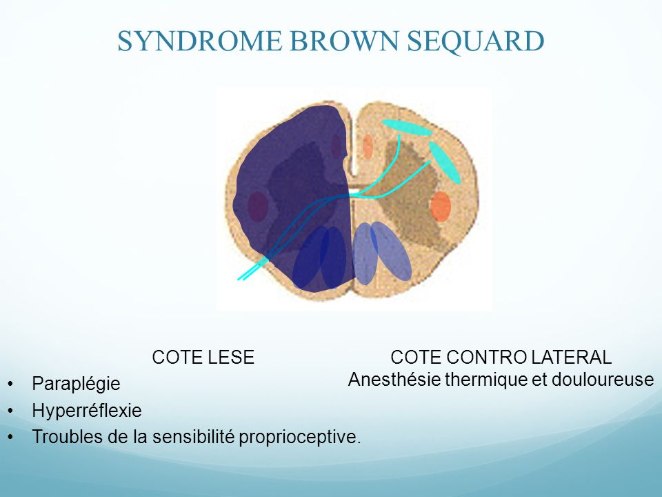 SYNDROME BROWN SEQUARD