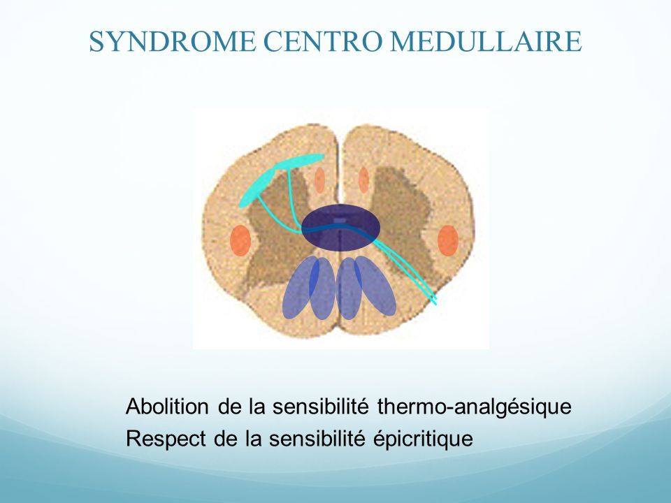 SYNDROME CENTRO MEDULLAIRE
