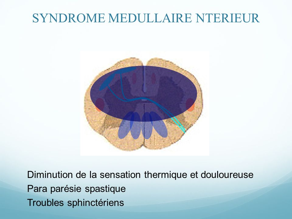 SYNDROME MEDULLAIRE NTERIEUR