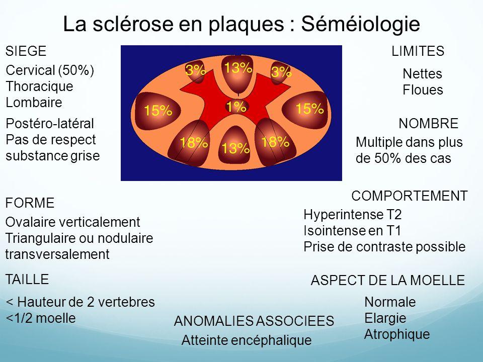 La sclérose en plaques : Séméiologie