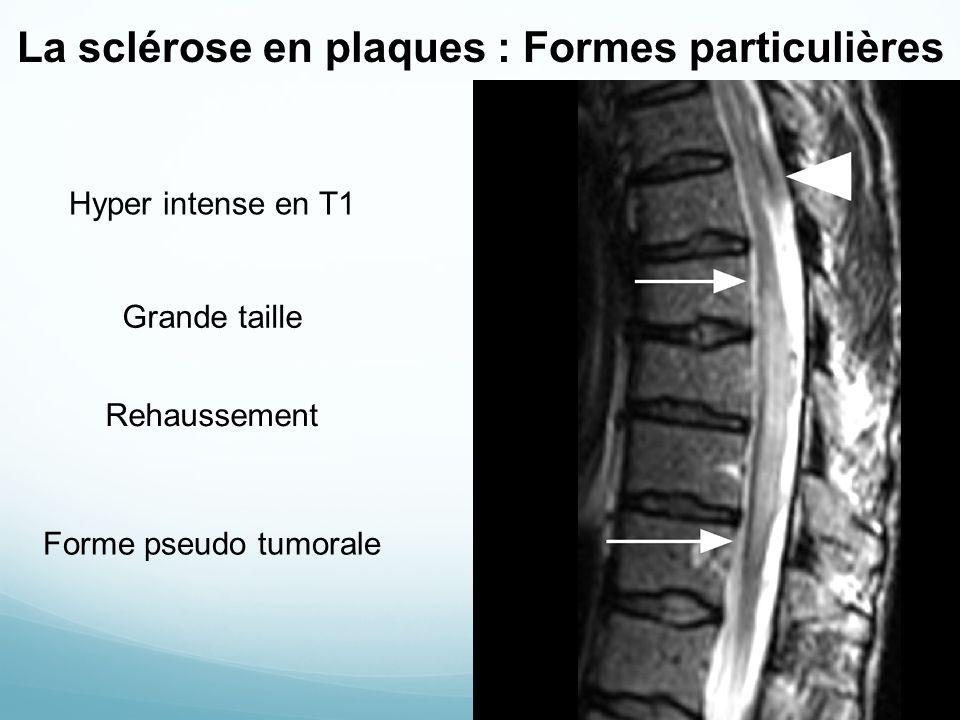 La sclérose en plaques : Formes particulières