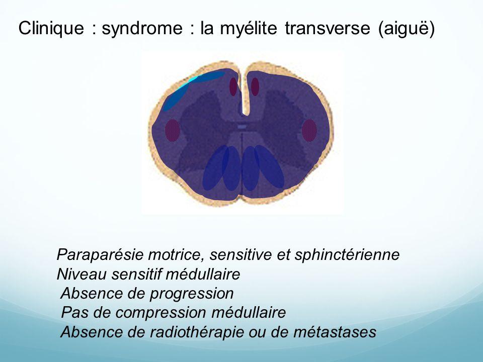 Clinique : syndrome : la myélite transverse (aiguë)