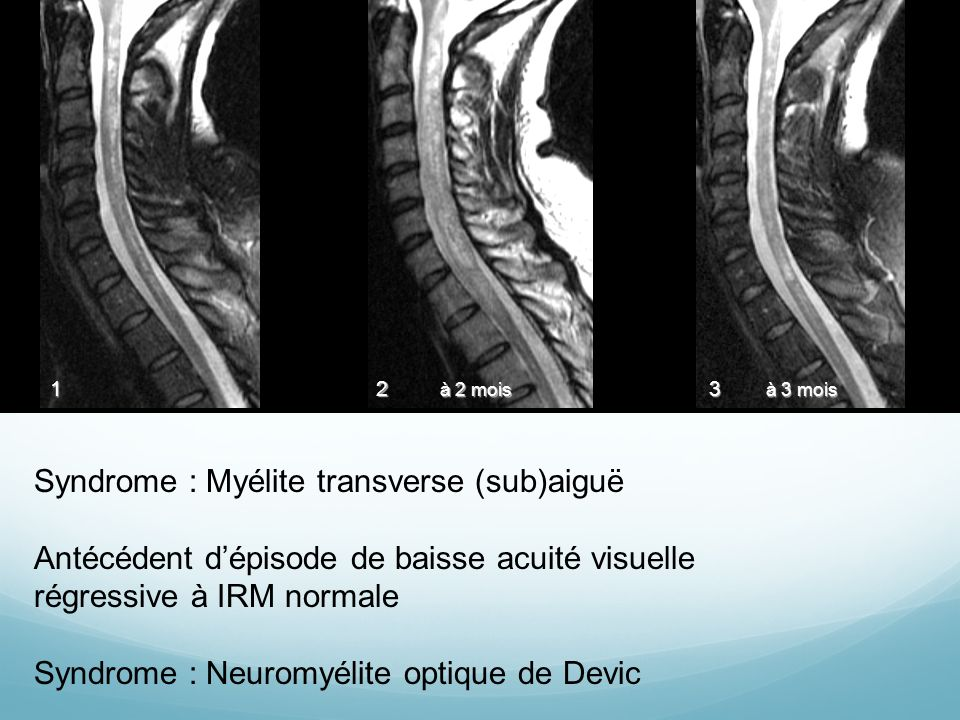 Syndrome : Myélite transverse (sub)aiguë