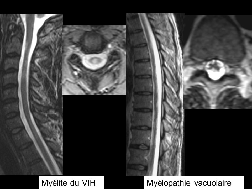 Myélite du VIH Myélopathie vacuolaire