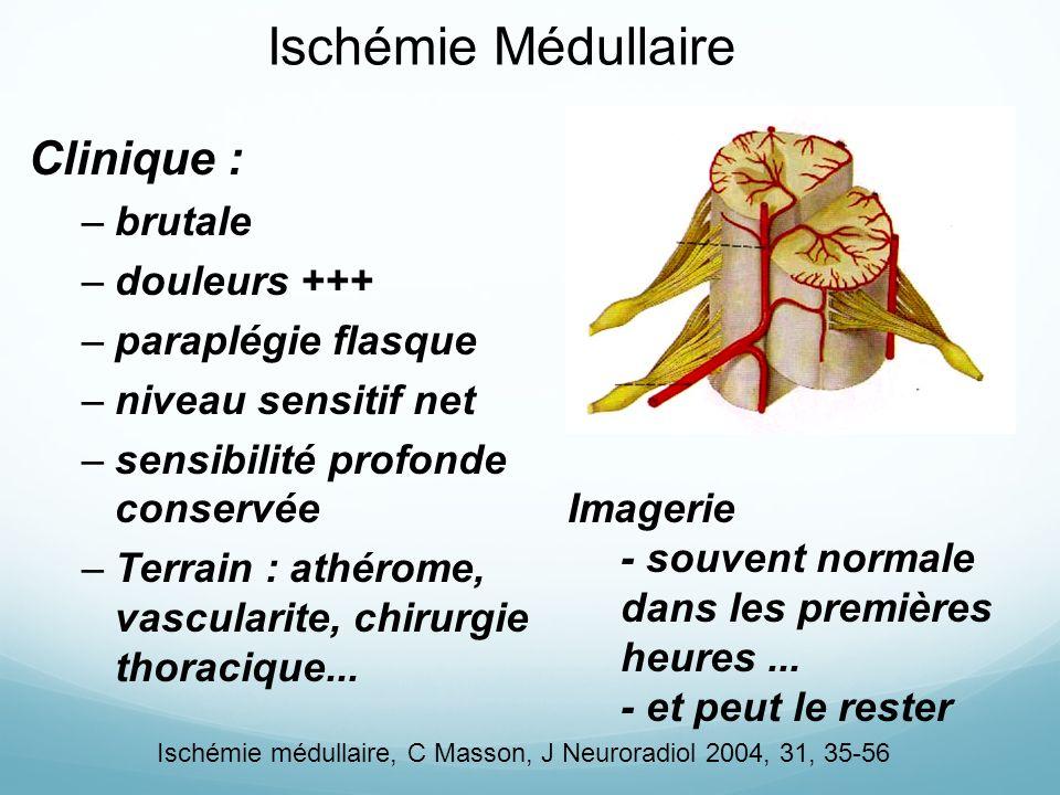 Ischémie Médullaire Clinique : brutale douleurs +++ paraplégie flasque