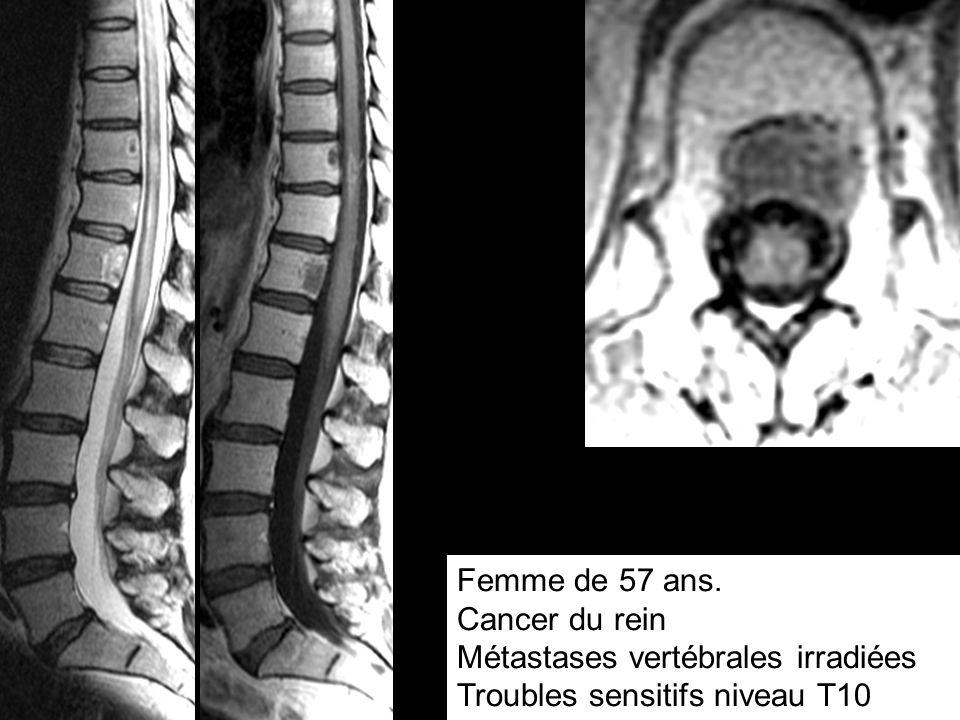 Femme de 57 ans. Cancer du rein Métastases vertébrales irradiées Troubles sensitifs niveau T10