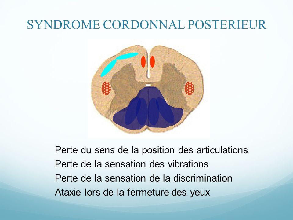 SYNDROME CORDONNAL POSTERIEUR