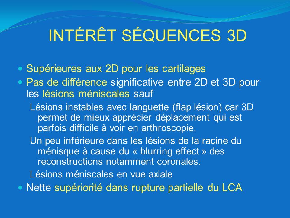 INTÉRÊT SÉQUENCES 3D Supérieures aux 2D pour les cartilages