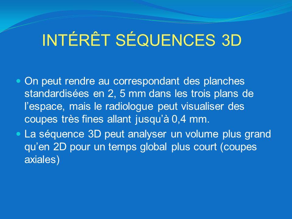 INTÉRÊT SÉQUENCES 3D