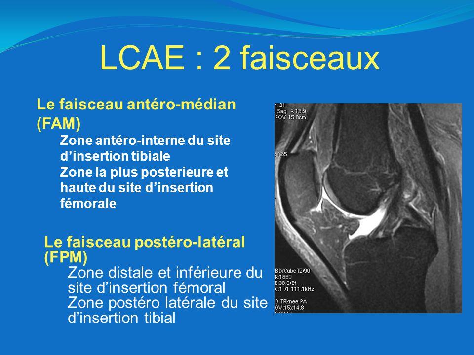 LCAE : 2 faisceaux Le faisceau antéro-médian (FAM)