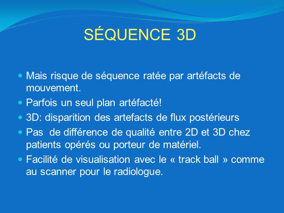 SÉQUENCE 3D Mais risque de séquence ratée par artéfacts de mouvement.