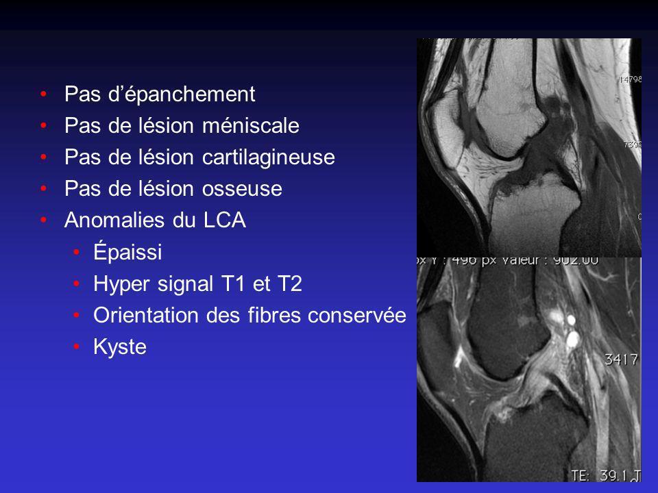 Pas d'épanchement Pas de lésion méniscale. Pas de lésion cartilagineuse. Pas de lésion osseuse. Anomalies du LCA.