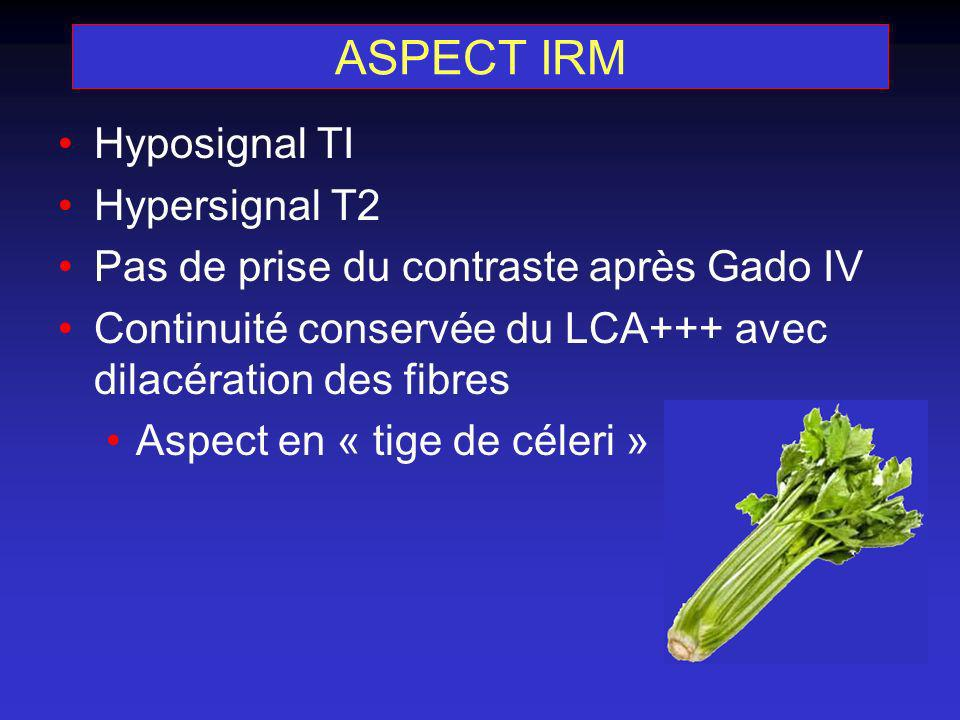 ASPECT IRM Hyposignal TI Hypersignal T2