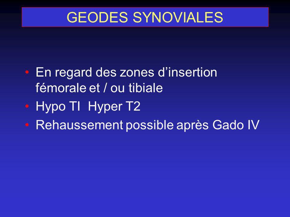 GEODES SYNOVIALES En regard des zones d'insertion fémorale et / ou tibiale.