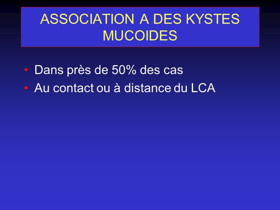 ASSOCIATION A DES KYSTES MUCOIDES