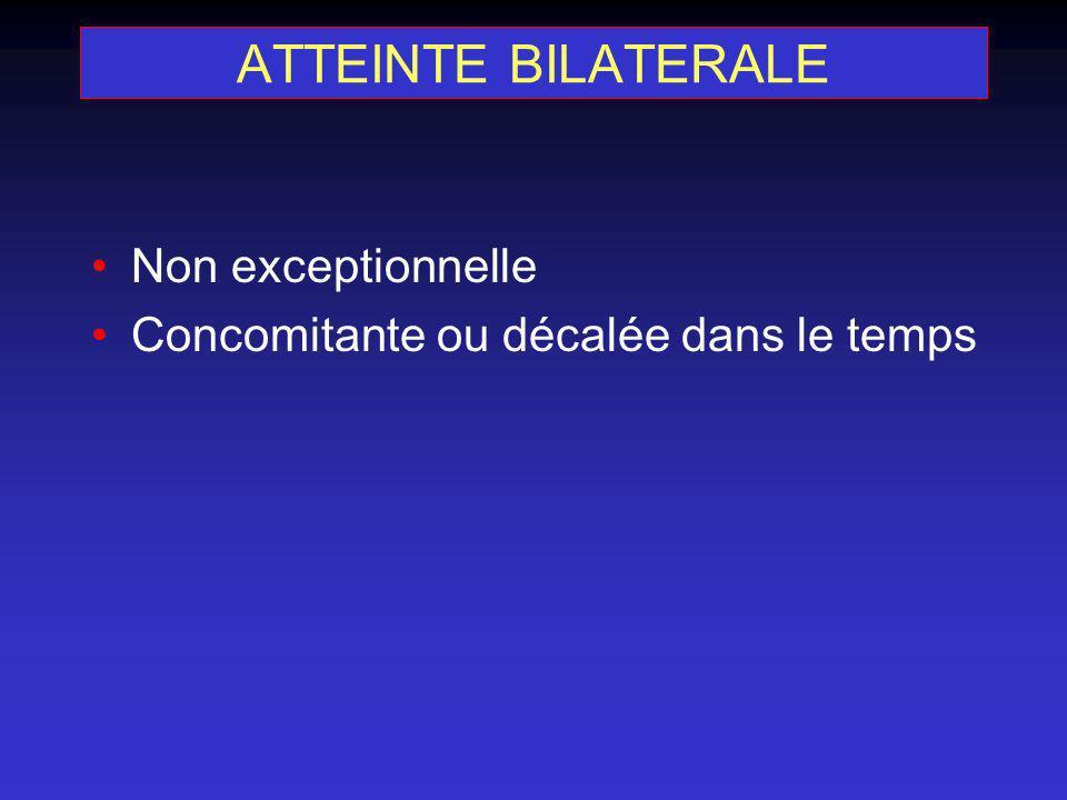 ATTEINTE BILATERALE Non exceptionnelle