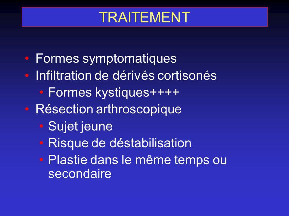 TRAITEMENT Formes symptomatiques Infiltration de dérivés cortisonés