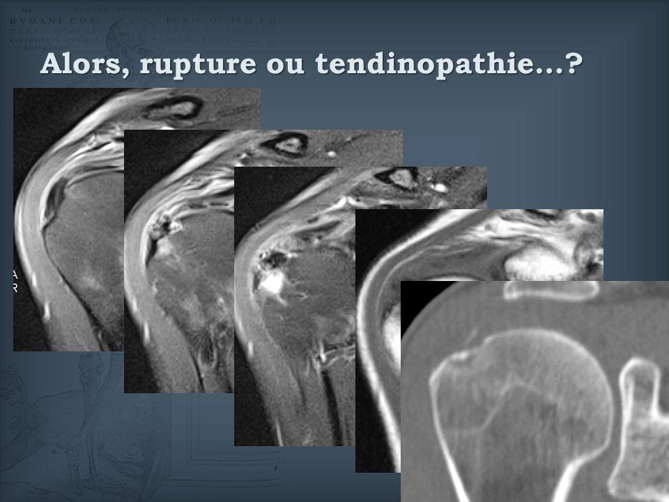 Alors, rupture ou tendinopathie…