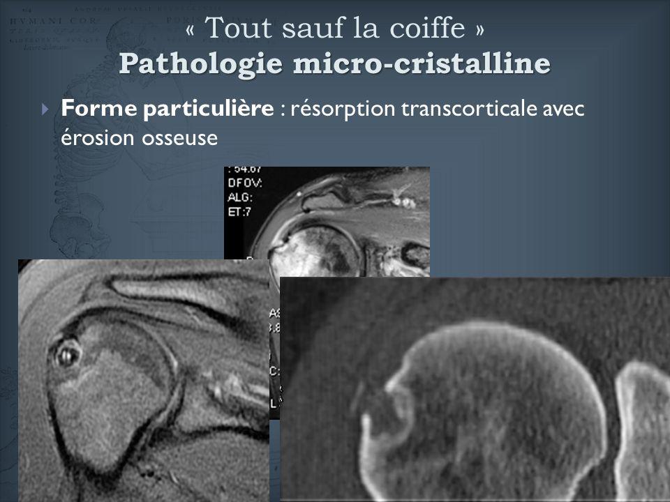 « Tout sauf la coiffe » Pathologie micro-cristalline