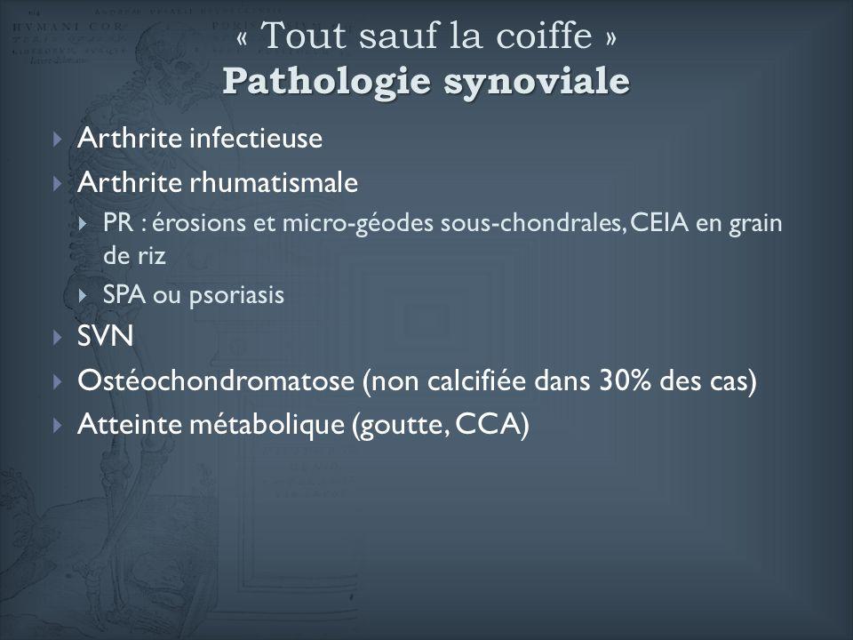 « Tout sauf la coiffe » Pathologie synoviale