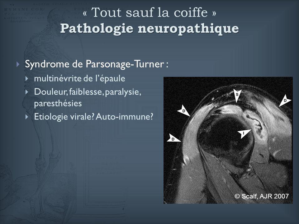 « Tout sauf la coiffe » Pathologie neuropathique