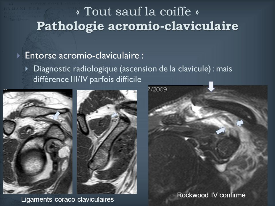 « Tout sauf la coiffe » Pathologie acromio-claviculaire