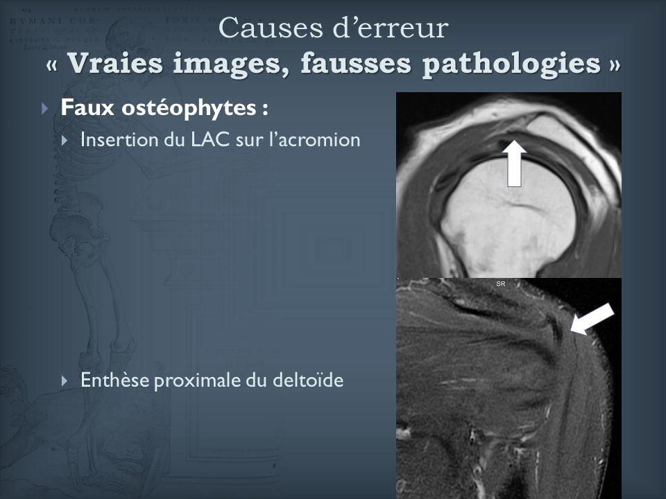 Causes d'erreur « Vraies images, fausses pathologies »