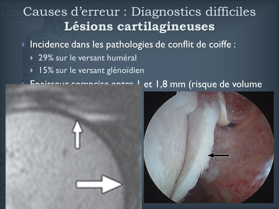 Causes d'erreur : Diagnostics difficiles Lésions cartilagineuses