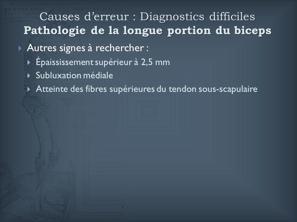 Causes d'erreur : Diagnostics difficiles Pathologie de la longue portion du biceps