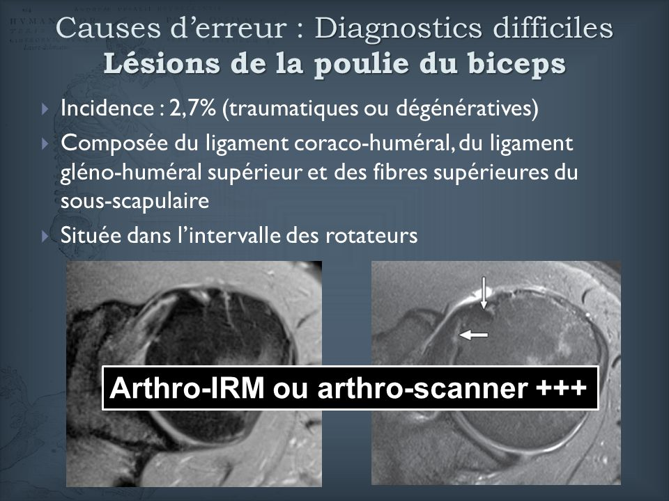 Arthro-IRM ou arthro-scanner +++