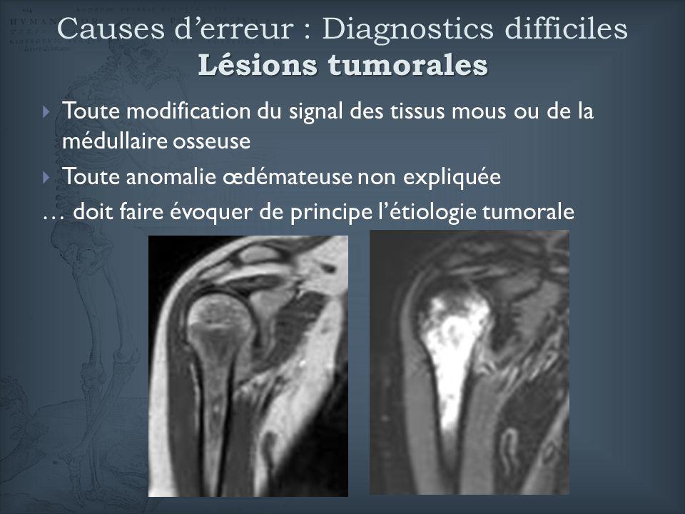 Causes d'erreur : Diagnostics difficiles Lésions tumorales