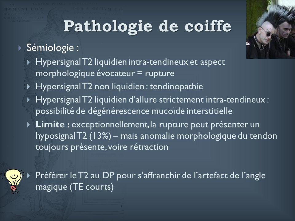 Pathologie de coiffe Sémiologie :