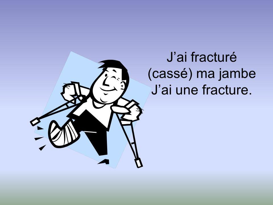 J'ai fracturé (cassé) ma jambe