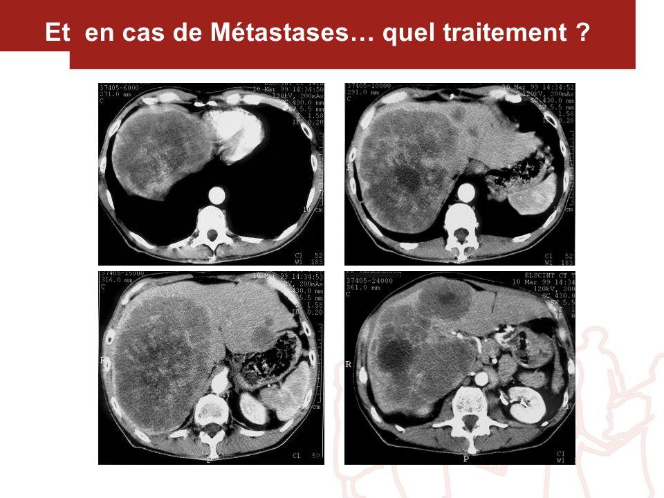 Et en cas de Métastases… quel traitement