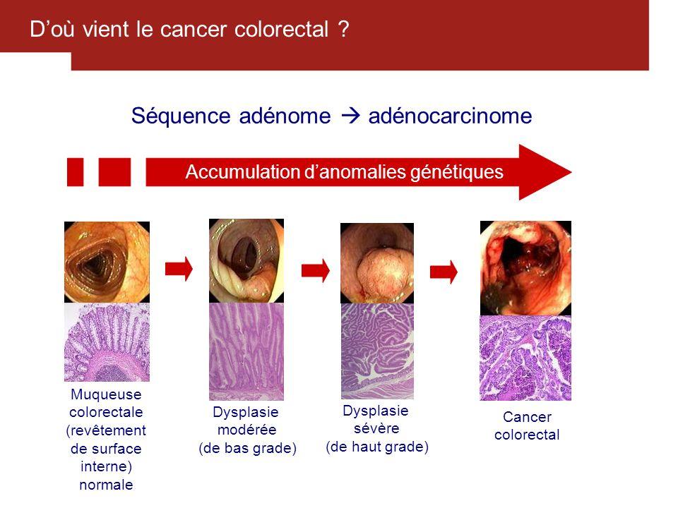 D'où vient le cancer colorectal