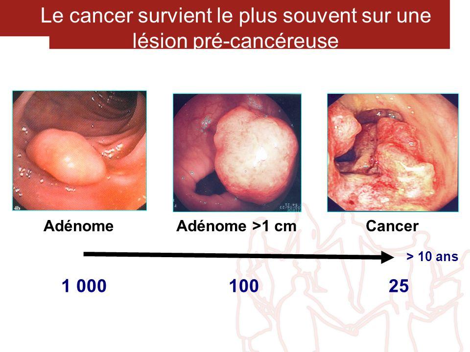 Le cancer survient le plus souvent sur une lésion pré-cancéreuse