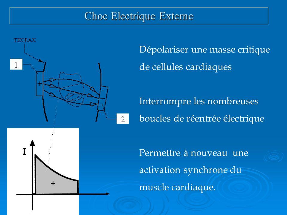 Choc Electrique Externe
