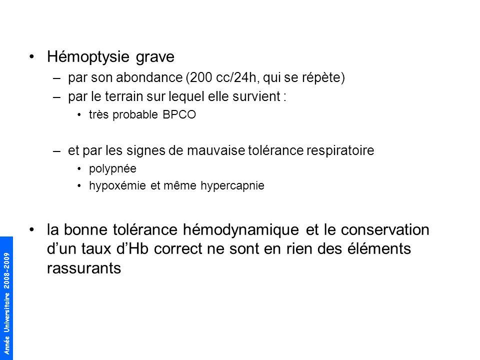 Hémoptysie grave par son abondance (200 cc/24h, qui se répète) par le terrain sur lequel elle survient :